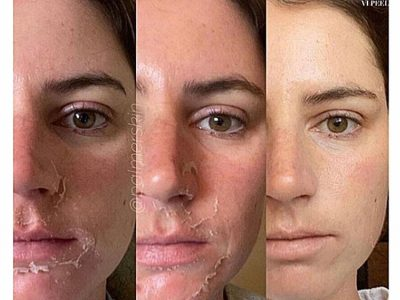 Before And After Face