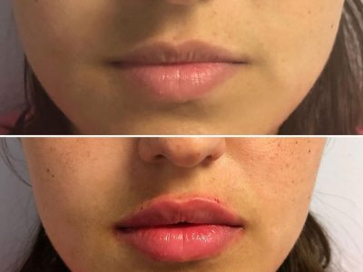Lips Before=after